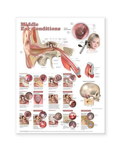 Middle Ear Conditions Poster